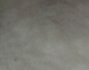 在武汉治疗白癜风好的医院?白癜风会影响身体吗?